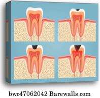 Tooth decay, Canvas Print   Barewalls Posters & Prints