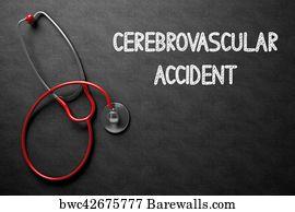 art print of cerebrovascular accident on chalkboard 3d illustration