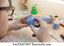 1,096 Dental mold Posters and Art Prints | Barewalls