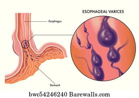 Canvas Print Of Esophageal Varices Barewalls Posters