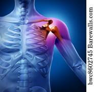 Что такое остеохондроз левого плеча