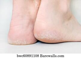 dry cracked feet fungus